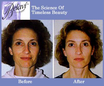 Massage Belavi facial